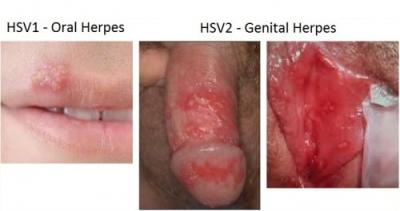 Herpes type 1 dating
